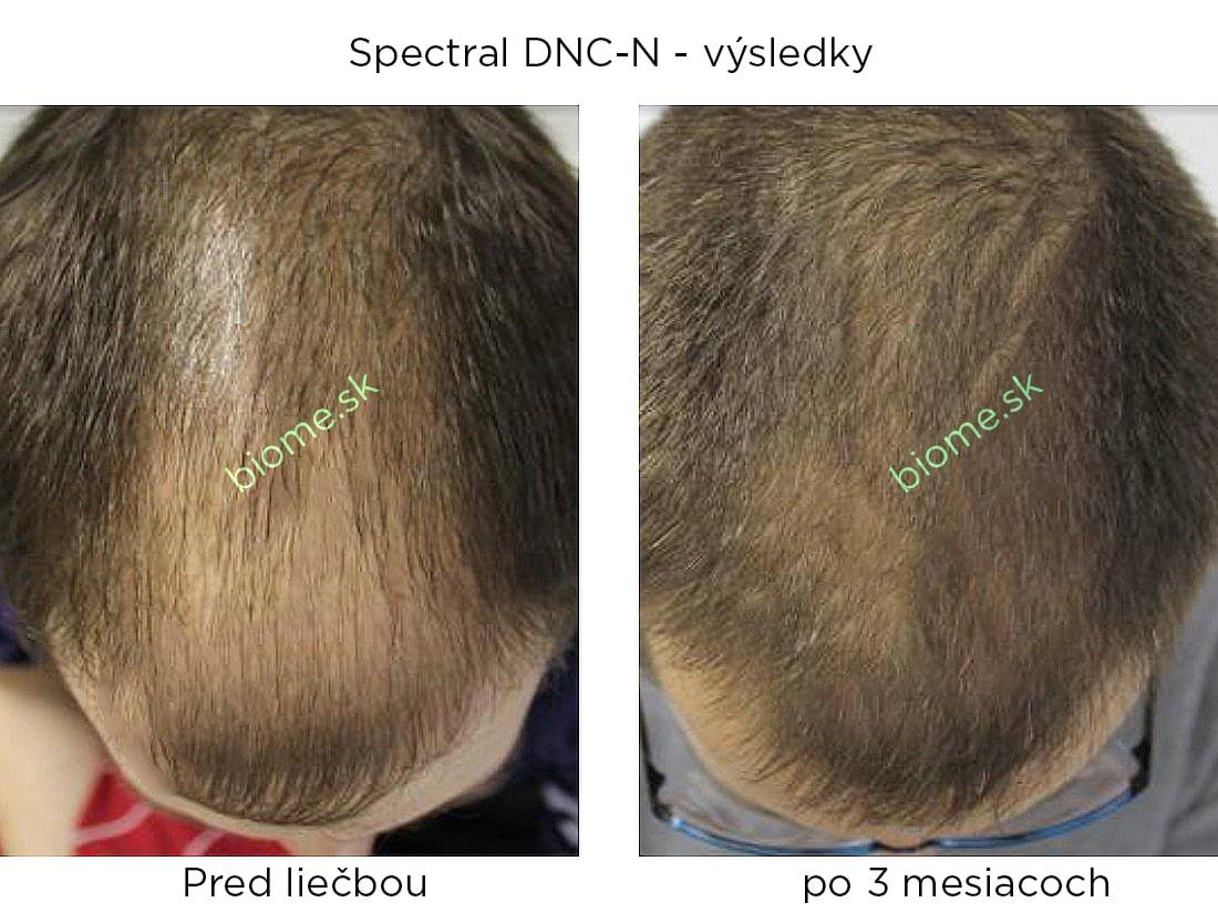 výsledky používania produktu spectral DNCN s nanoxidilom u mužov po 3 mesiacoch