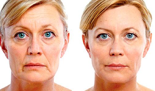 Výsledky liečby kyeslinou hyalúronovou (restylane)
